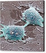 Dividing Cancer Cell, Sem Acrylic Print
