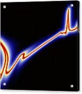 Heart Disease: Artwork Of An Irregular Ecg Trace Acrylic Print
