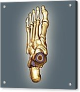 Normal Foot, 3d Ct Scan Acrylic Print