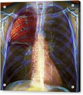 Pneumonia, X-ray Acrylic Print