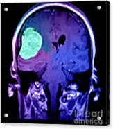 Right Sided Meningioma Acrylic Print