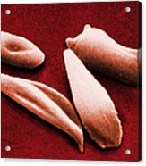 Sickle Red Blood Cells Acrylic Print