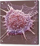 Cervical Cancer Cell, Sem Acrylic Print