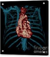 3d Ct Reconstruction Of Heart Acrylic Print