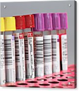 Blood Samples Acrylic Print by Tek Image