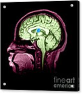 Mri Colloid Cyst Of Third Ventricle Acrylic Print