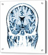 Normal Coronal Mri Of The Brain Acrylic Print