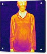 Thermogram Of A Boy Acrylic Print