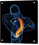 Back Pain, Conceptual Artwork Acrylic Print