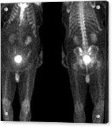 Bone Scan Acrylic Print by Medical Body Scans