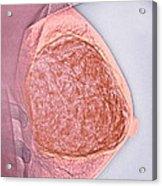Breast Tumour, X-ray Acrylic Print