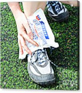 Injured Ankle Acrylic Print by Photo Researchers