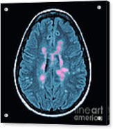 Mri Of Multiple Sclerosis Acrylic Print