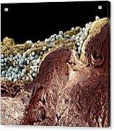 Pyoderma Skin Disease, Sem Acrylic Print by Steve Gschmeissner