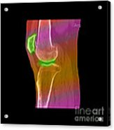 Knee Showing Osteoporosis Acrylic Print