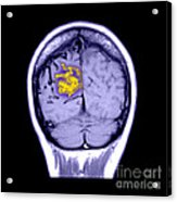Mri Of Arterial Venous Malformation Acrylic Print
