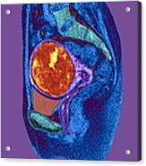 Uterine Fibroid, Mri Scan Acrylic Print