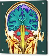 Healthy Brain, Mri Scan Acrylic Print