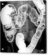 Normal Double Contrast Barium Enema Acrylic Print