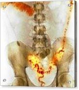 Ulcerative Colitis, X-ray Acrylic Print