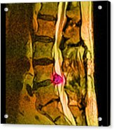 Herniated Disc Acrylic Print by Medical Body Scans
