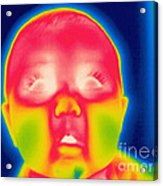 A Thermogram Of A 5 Month Old Baby Acrylic Print