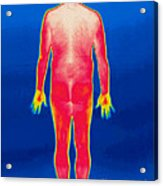 A Thermogram Of A Nude Man Back Acrylic Print