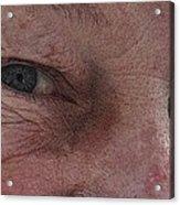 Aging Process Acrylic Print