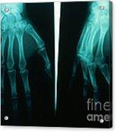 Arthritic & Normal Hand Acrylic Print