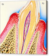 Artwork Of Tooth Showing Periodontal Disease Acrylic Print