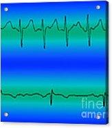 Atrial Fibrillation & Normal Heart Beat Acrylic Print