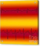 Atrial Flutter & Atrial Fibrillation Acrylic Print