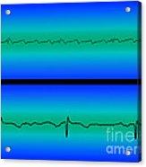 Atrial Flutter & Normal Heart Beat Acrylic Print