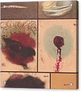Bloodstain, Blisters, Bullet Holes, 1864 Acrylic Print by Science Source