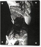 Body Projection Woman - Duplex Acrylic Print