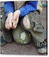 Boy Sitting On Ball - Torn Trousers Acrylic Print