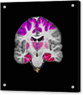 Brain Areas Affected By Alzheimers Acrylic Print