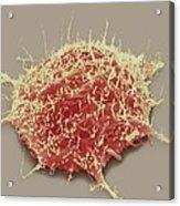 Brain Cancer Cell, Sem Acrylic Print