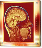 Brain, Mri Scan Acrylic Print