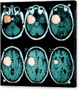 Brain Tumor Acrylic Print