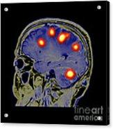 Brain Tumors Acrylic Print
