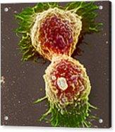 Breast Cancer Cells Acrylic Print