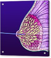 Breast Cancer Endoscope Acrylic Print by Volker Steger