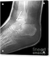 Broken Ankle Acrylic Print
