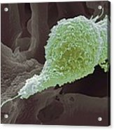 Cervical Cancer Cell, Sem Acrylic Print by Steve Gschmeissner