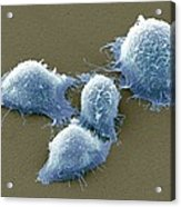Cervical Cancer Cells, Sem Acrylic Print by Steve Gschmeissner