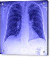 Chest X-ray Acrylic Print
