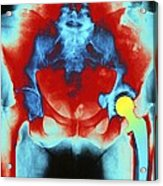 Coloured X-ray Of An Artificial Hip Joint Acrylic Print
