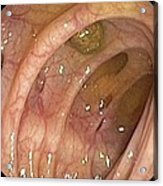Diverticular Disease Of The Colon Acrylic Print by Gastrolab