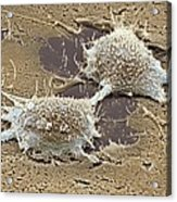 Dividing Cancer Cell, Sem Acrylic Print by Steve Gschmeissner
